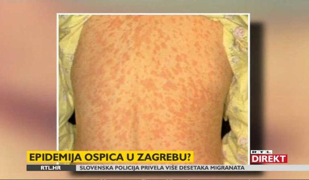 U Zagrebu sedmero oboljelih od ospica (thumbnail)