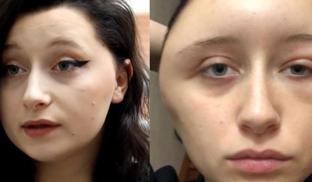 Oprezno s farbom: ženi cijela glava nabubrila zbog jake alergijske reakcije