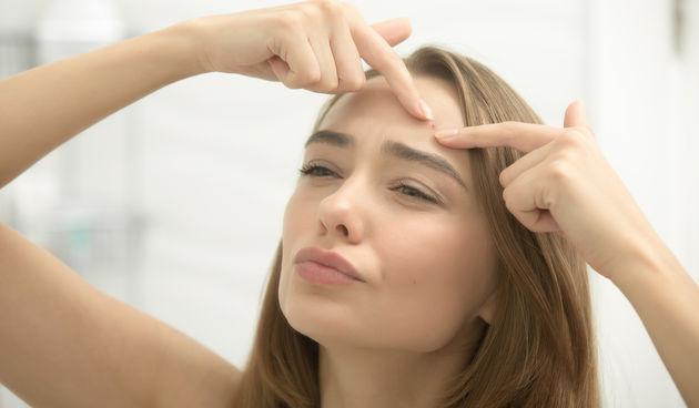 1. Čelo i rub kose - Razlog pojave često su kozmetički proizvodi koji loše reagiraju s vašom kožom. Također, razlozi mogu biti probavne prirode - nezdrava prehrana koja vodi do probavne neravnoteže