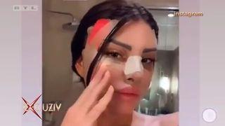 Snimka+iz+turske+klinike:+Bivša+Miss+Supranational+Eni+Šukunda+ima+novo+lice!+(thumbnail)
