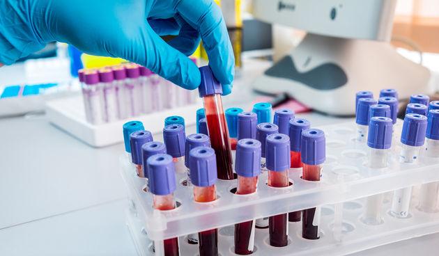 Test iz krvi, ilustracija