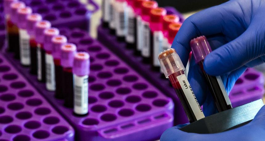 Poznati Plivin antibiotik možda pomaže protiv korone u kombinaciji s lijekom protiv malarije