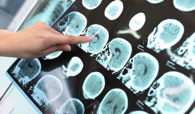 Scan mozga