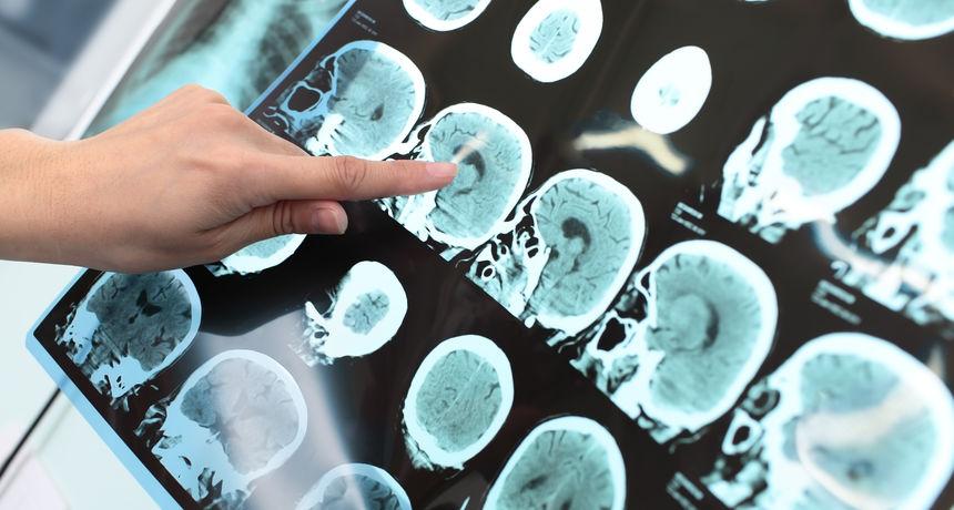 Misteriozna neurološka bolest zabrinjava liječnike: Pacijenti imaju napadaje, haluciniraju i postaju agresivni