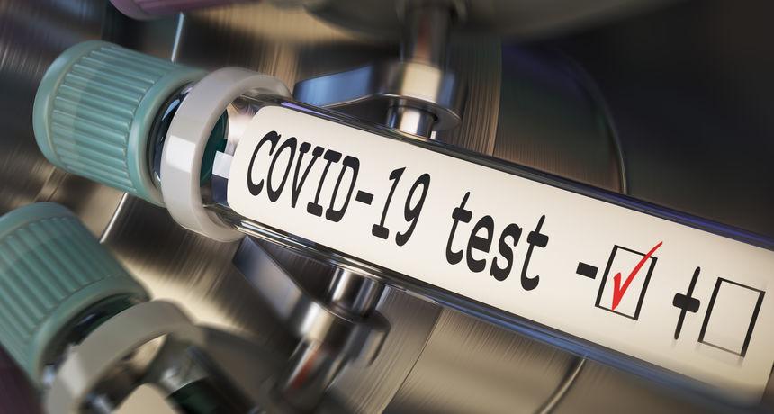 Od danas nove cijene, evo koliko košta testiranje na COVID-19 bez uputnice