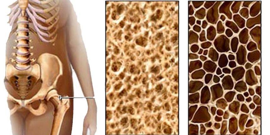 Osteoporoza - bolest koja se može lako dijagnosticirati i uspješno liječiti