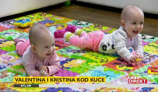 Najpoznatije hrvatske sijamske blizanke, razdvojene u siječnju, odlično napreduju (thumbnail)