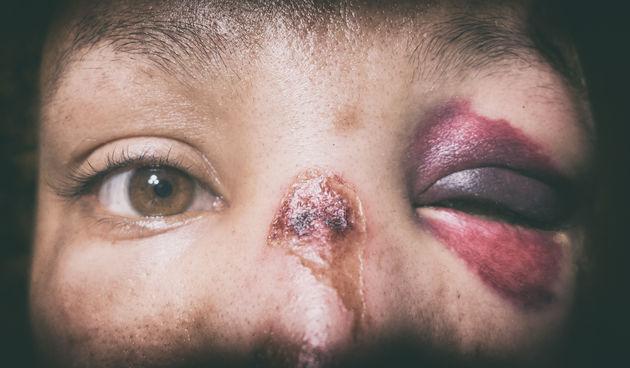 nasilje u obitelji nasilje nad ženama
