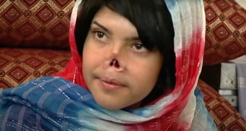 Slučaj ove djevojke šokirao je svijet - talibani su joj odsjekli nos i uši: Prošla je 12 operacija, a ovako izgleda danas