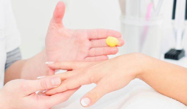 Kako se riješiti staračkih pjega na rukama?