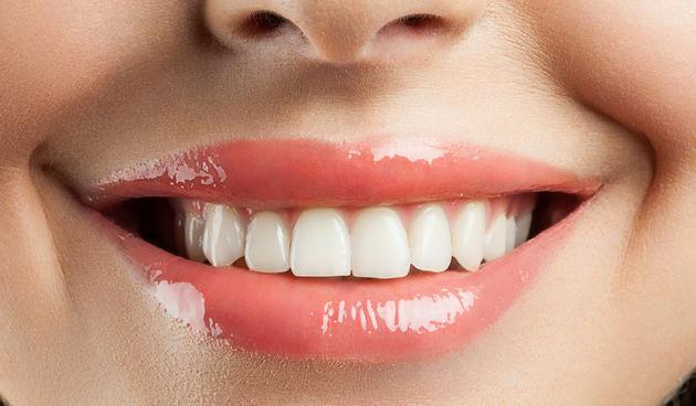 Prekrasan osmijeh