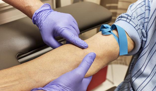 Krvni test